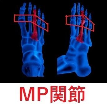 MP関節を意識すれば土踏まずが上がる。3つのアーチで足裏強化